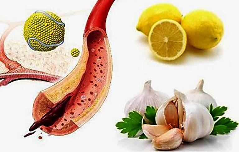 Как убрать холестериновые бляшки в сосудах