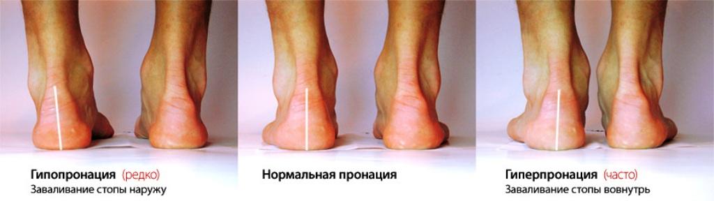 Пронация стопы