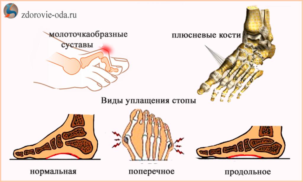 Деформации стопы