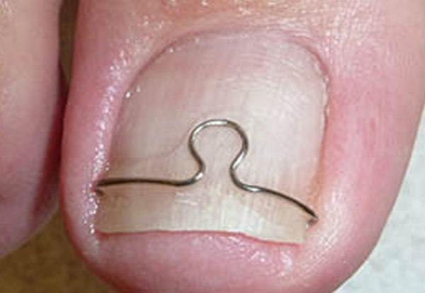 Скобы от вросшего ногтя