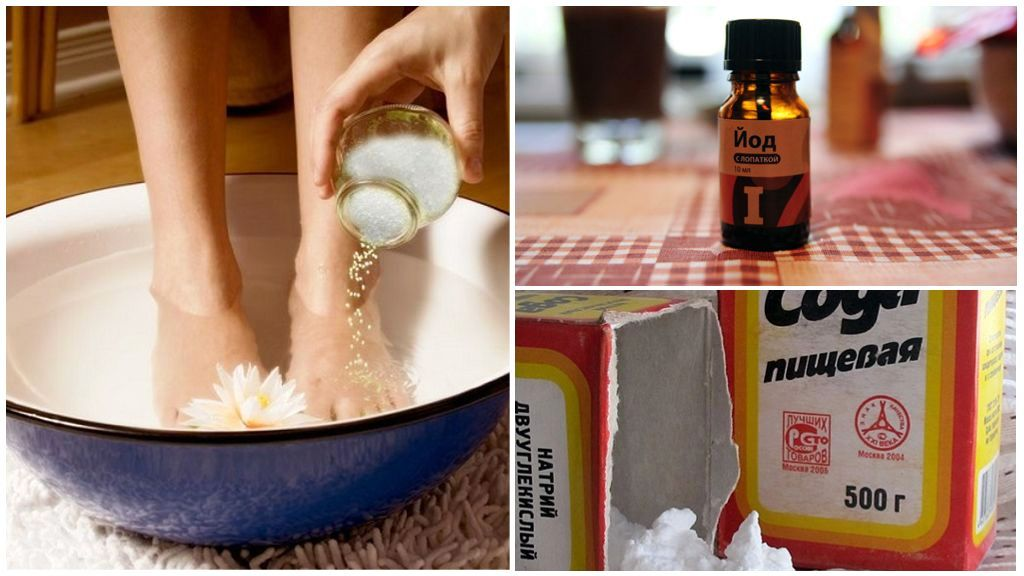 Солевые ванночки с йодом и содой при шпоре